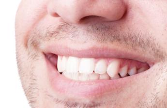 Půjčka na zuby
